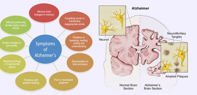 human brain diseases list - causes, symptoms and treatments, Muscles